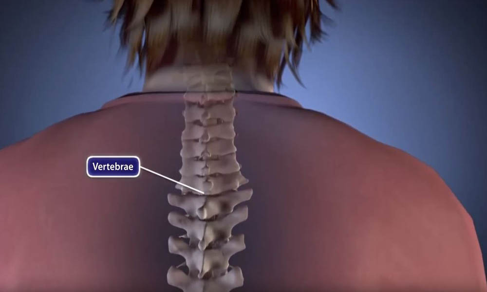 Scoliosis Treatment in India