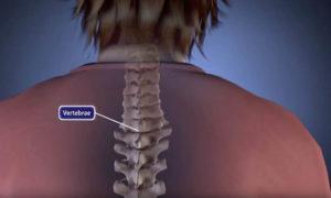 Scoliosis Treatment in India