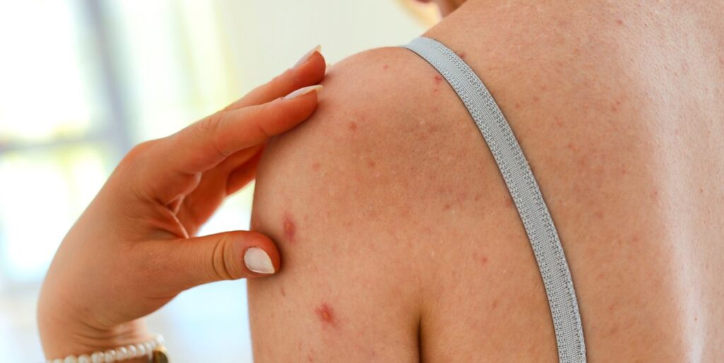 Natural Remedies for Treating Back Acne